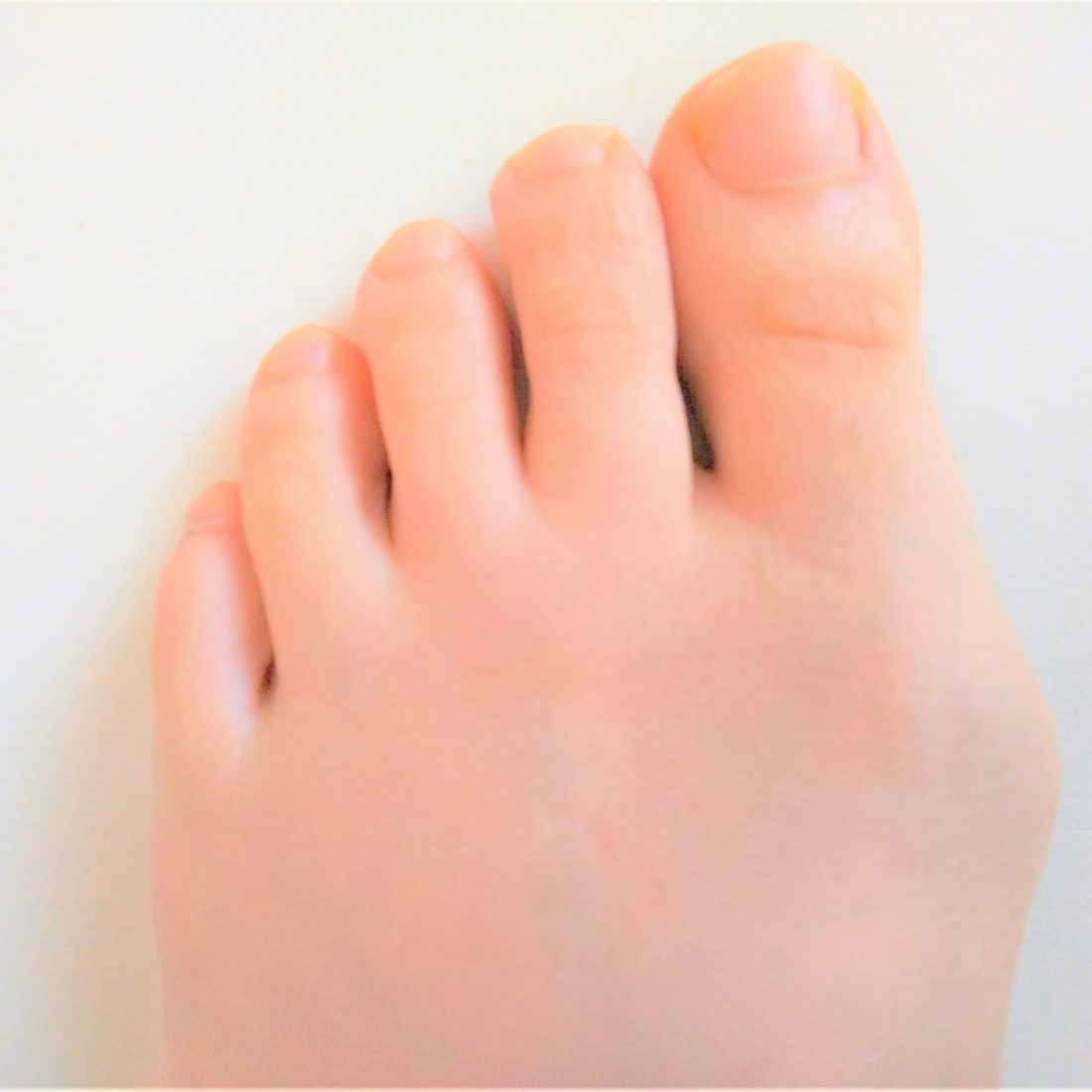 足 の 指 付け根 痛い